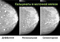 Фиброзно-жировая инволюция молочных желез: трансформация железистой ткани, диагностика и лечение