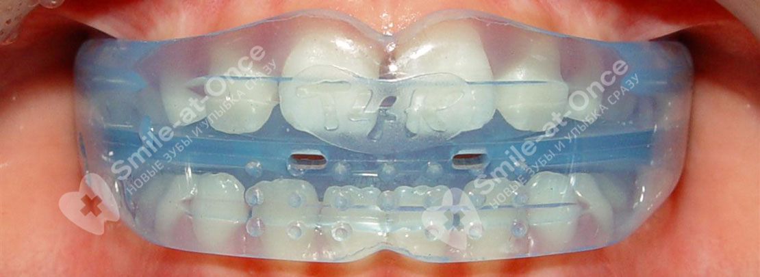 Трейнеры для зубов противопоказания