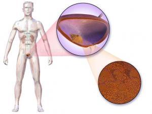 Где находится мочевой пузырь – особенности анатомического строения