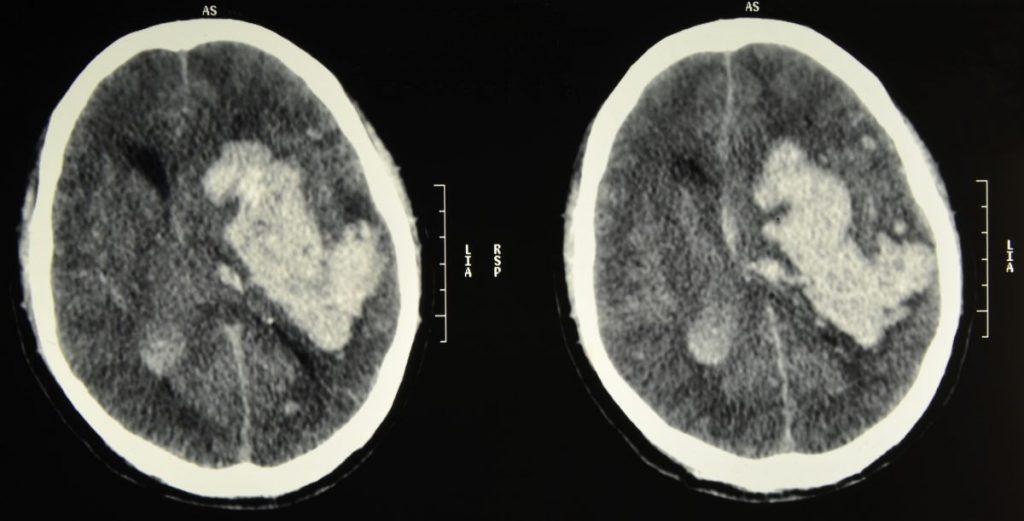 Признаки отека головного мозга