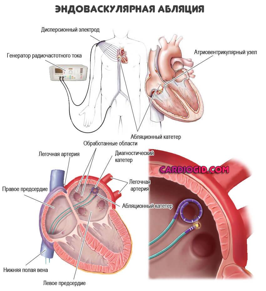 Рча абляция сердца: что это такое, показания, как делают, противопоказания и последствия