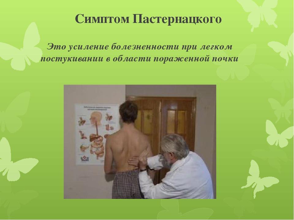 Симптом пастернацкого как проводится. определение симптома пастернацкого и перкуссия мочевого пузыря - инфо по медицине