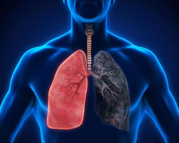 Криптогенная организующаяся пневмония: что это такое, симптомы и лечение | prof-medstail.ru