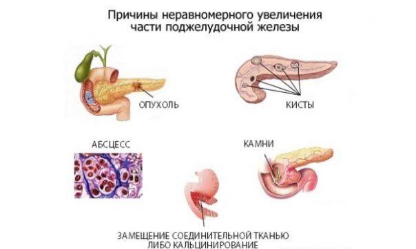 Липоматоз поджелудочной железы – лечение народными средствами