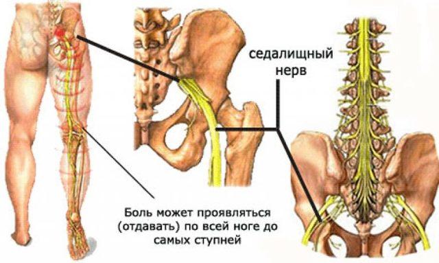 Симптомы и лечение ишиаса – воспаления седалищного нерва