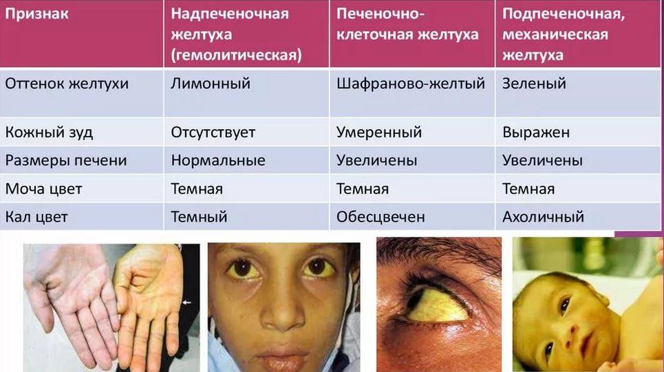 Причины и лечение механической желтухи