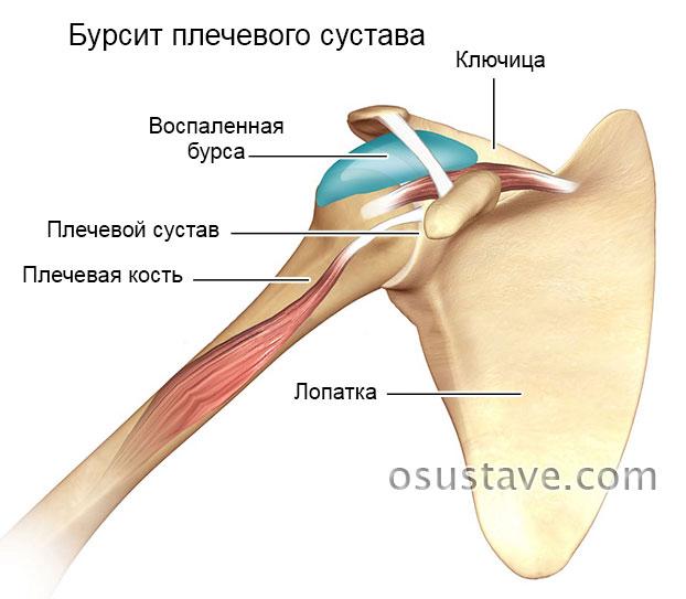 Бурсит в плечевом суставе
