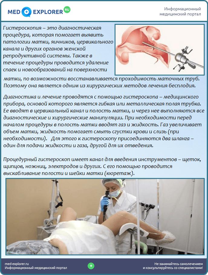 Гистероскопия — большая медицинская энциклопедия