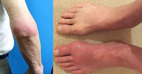 Что такое подагра у мужчин на ногах? фото и как ее лечить