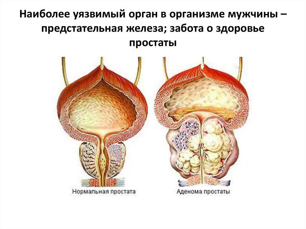 Аденома простаты у мужчин: что это такое, симптомы и лучшие методы лечения болезни