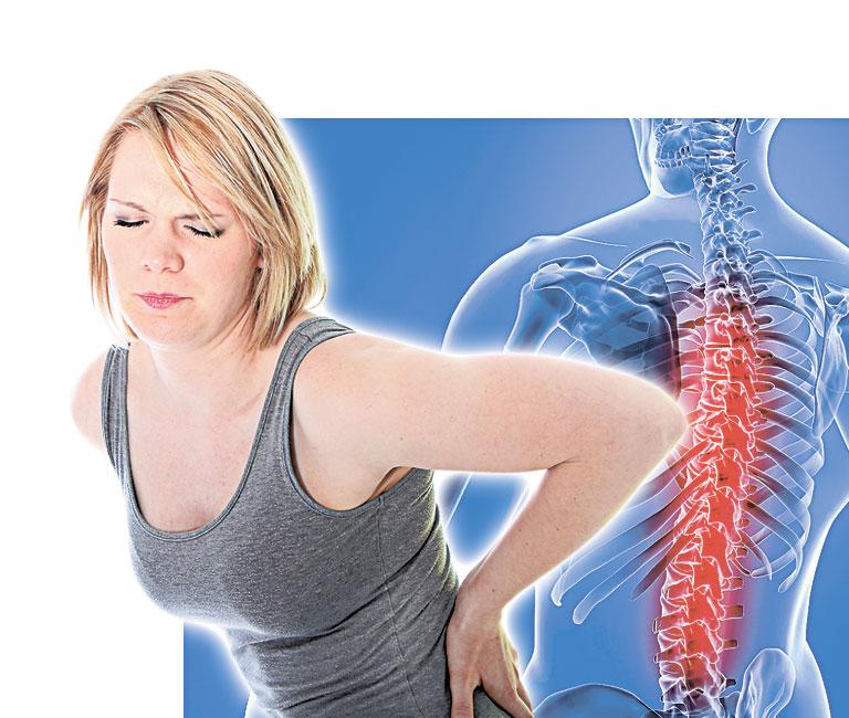 Радикулопатия - симптомы и лечение