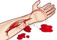Смешанное кровотечение первая помощь