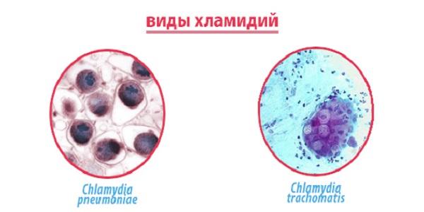 Хламидиоз: скрытая инфекция опасна для женщин, мужчин и детей