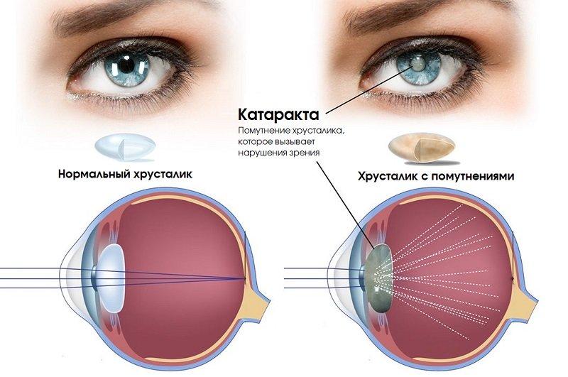 Катаракта глаза: что это такое, причины, первые признаки и симптомы, лечение помутнения хрусталика у взрослых людей