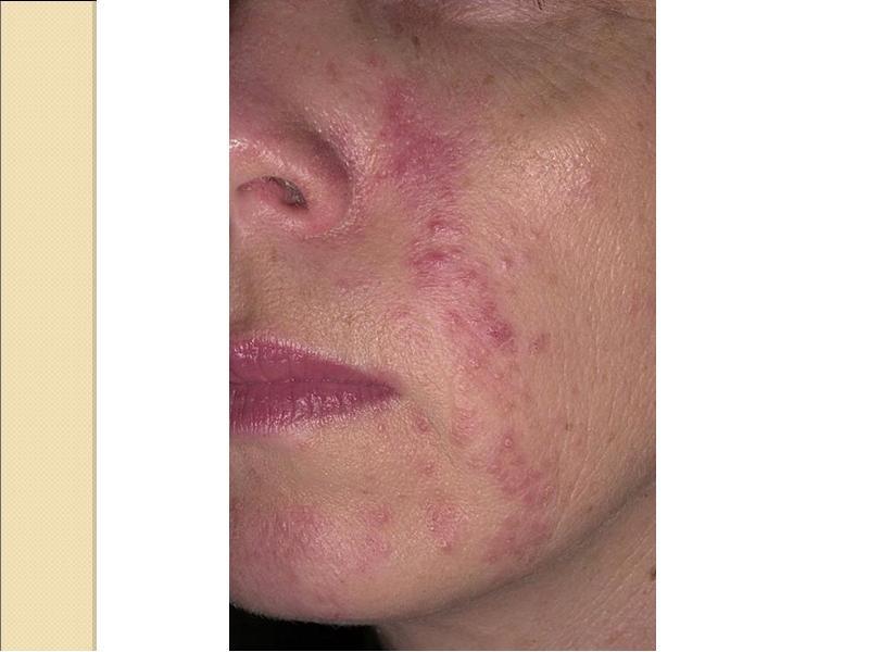 Крем от розацеа на лице: выбор увлажняющего крема и лечение заболевания