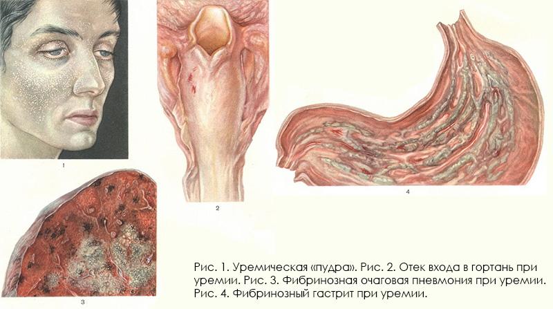 Мочекровие (уремия). определение и этиология. симптомы