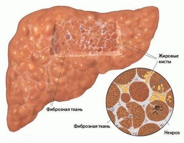 Фиброз печени 1 степени: что это такое и как лечить