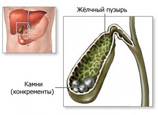 Перегиб желчного пузыря лечим и выздоравливаем