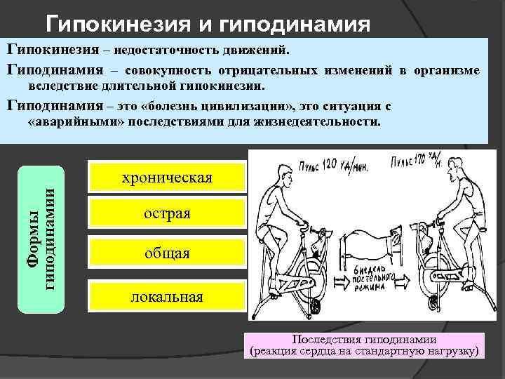 Гипокинезия - это... описание, последствия, профилактика, виды и лечение