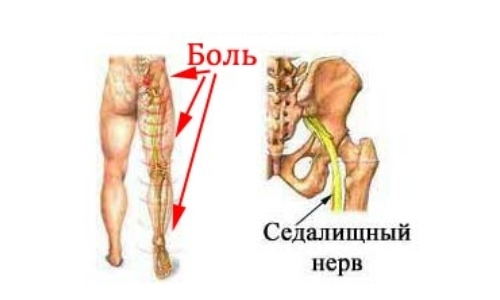 Люмбоишиалгия: что это такое, симптомы и лечение, что делать, если боль в пояснице отдает в ногу, причины люмбаго с ишиасом