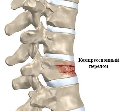 Компрессионные переломы позвоночника: симптомы, лечение, реабилитация