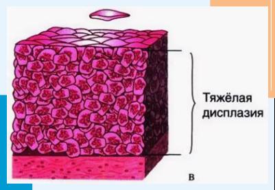 Дисплазия шейки матки 1 степени — что это такое и как лечить медикаментозно и эффективно