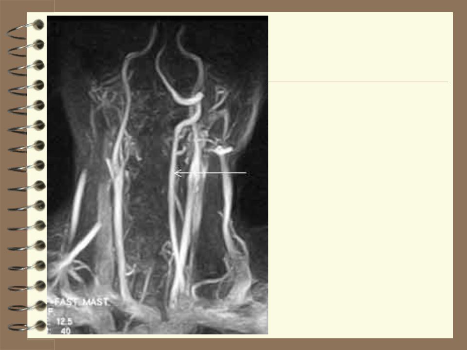 Гипоплазия позвоночной артерии (правой и левой): лечение, симптомы и причины