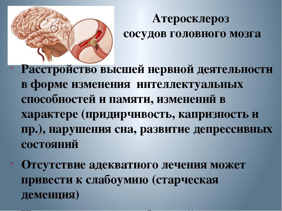 Инсульт (апоплексический удар)