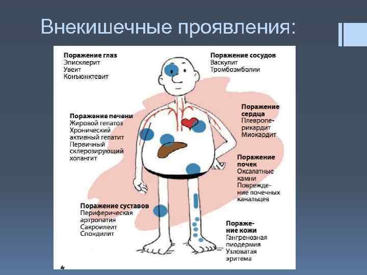 Болезнь крона: симптомы, фото, лечение у взрослых