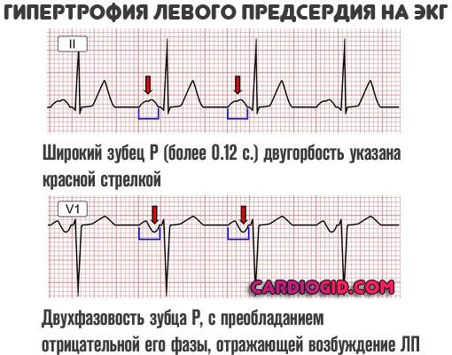 Дилатация левого предсердия и правого (полости обоих): что это, причины — заболевания сердца