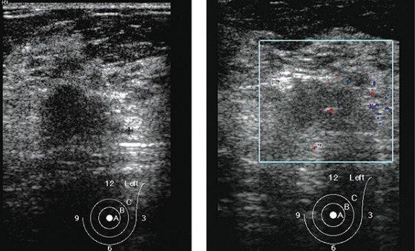 Как быстро растет фиброаденома молочной железы и какие ее размеры являются показанием для операции + методы лечения