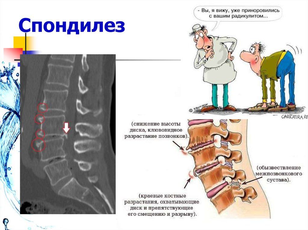 Спондилоартроз позвоночника: что это такое, лечение, препараты, лфк