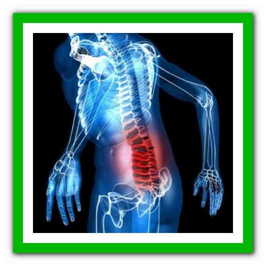 Хроническая люмбалгия - что это такое, симптомы, причины, диагностика, лечение