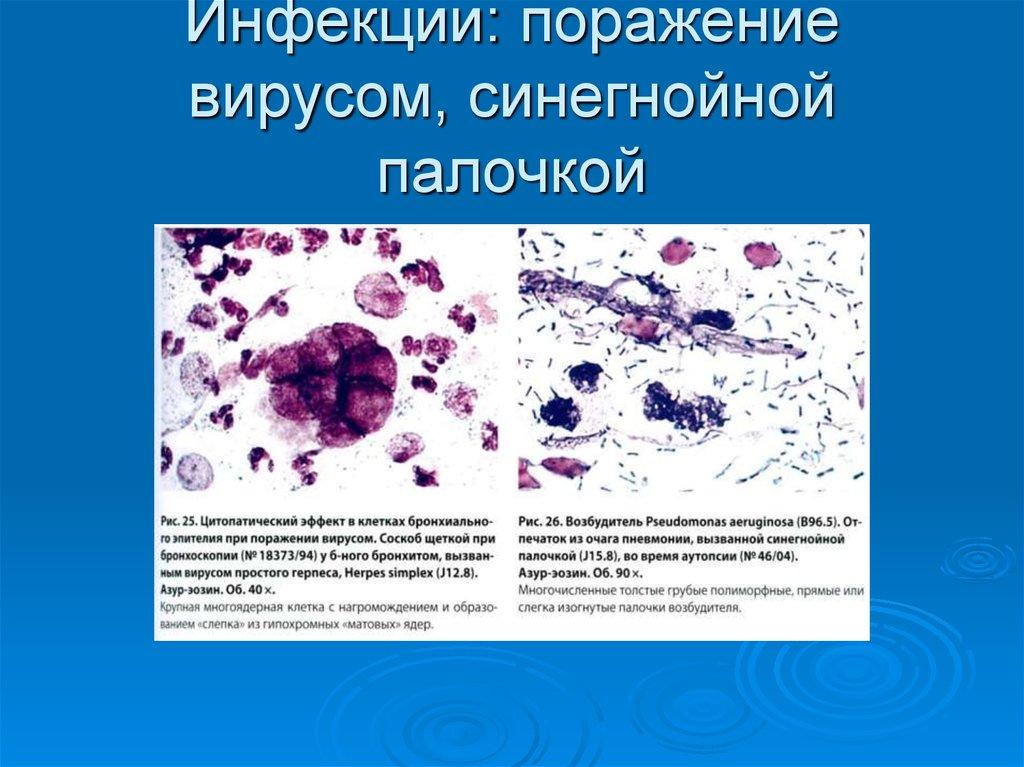 Синегнойная палочка (синегнойная инфекция)