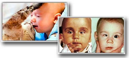 Токсоплазмоз, что это такое и чем опасен токсоплазмоз при беременности