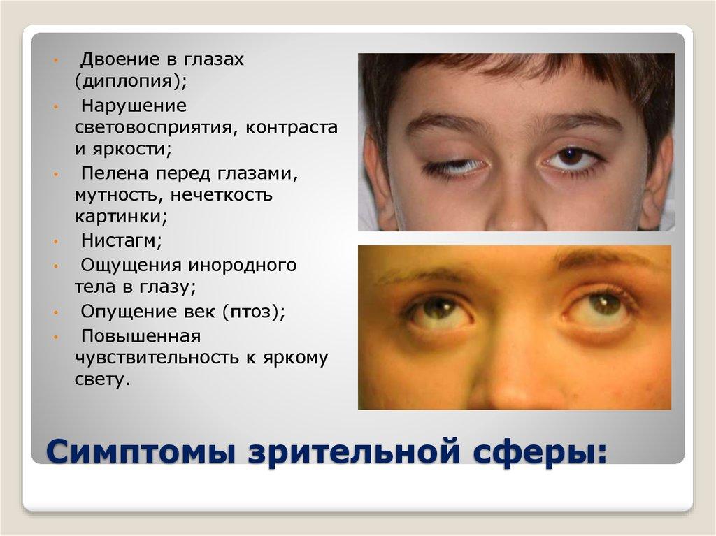 Астенопия глаз: лечение, симптомы, причины, диагностика и осложнения