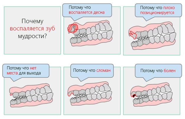 Растёт зуб мудрости: симптомы роста и возможные затруднения