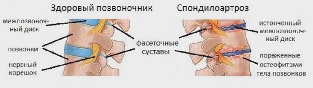 Спондилоартроз грудного отдела позвоночника: что это такое, симптомы и лечение