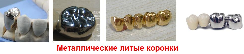 Зубная вкладка под коронку какую выбрать, рекомендации врача