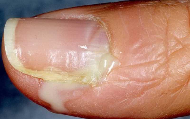 Панариций пальца на руке: лечение в домашних условиях