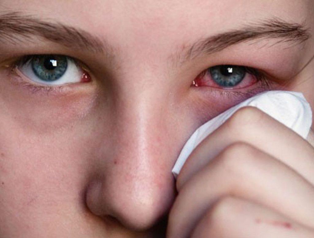Острый и подострый конъюнктивит глаз: лечение у взрослых и детей