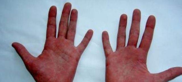 Болезнь (синдром) марфана - симптомы болезни, профилактика и лечение болезни (синдрома) марфана, причины заболевания и его диагностика на eurolab