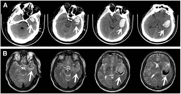 Какие последствия и причины кровоизлияния в головной мозг