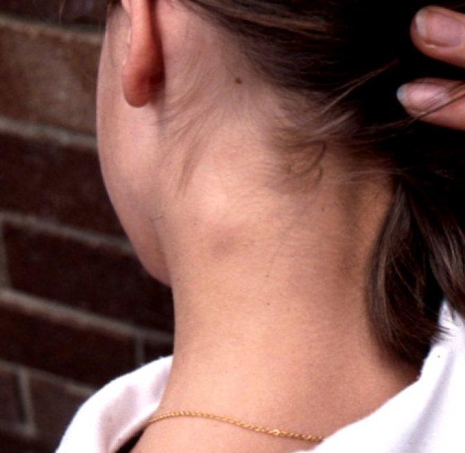 Воспаленные лимфоузлы: как лечить и что делать