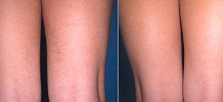 Gmt-clinic.ru :: elos-эпиляция бикини, ног (элос).