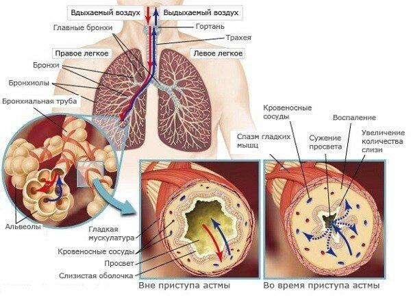 Ржавая мокрота: причины, симптомы, диагностика, профилактика