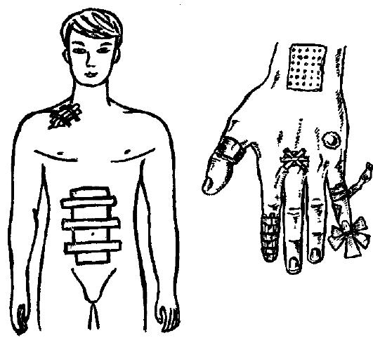 Что такое десмургия: правила и способы наложения повязок на палец или голову, их виды и классификация в медицине или ортопедические пособия об этом