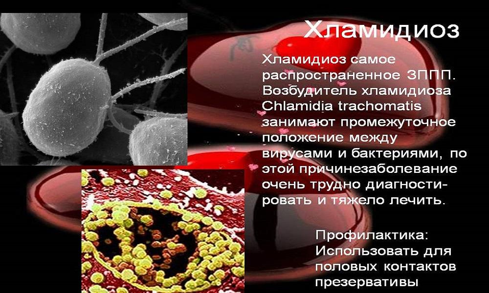 Хламидиоз: диагностика и лечение chlamydia trachomatis | университетская клиника