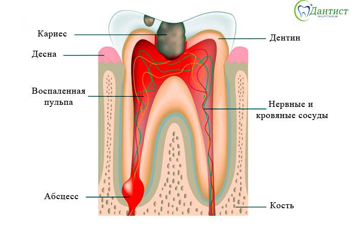 Что такое депульпирование зубов?