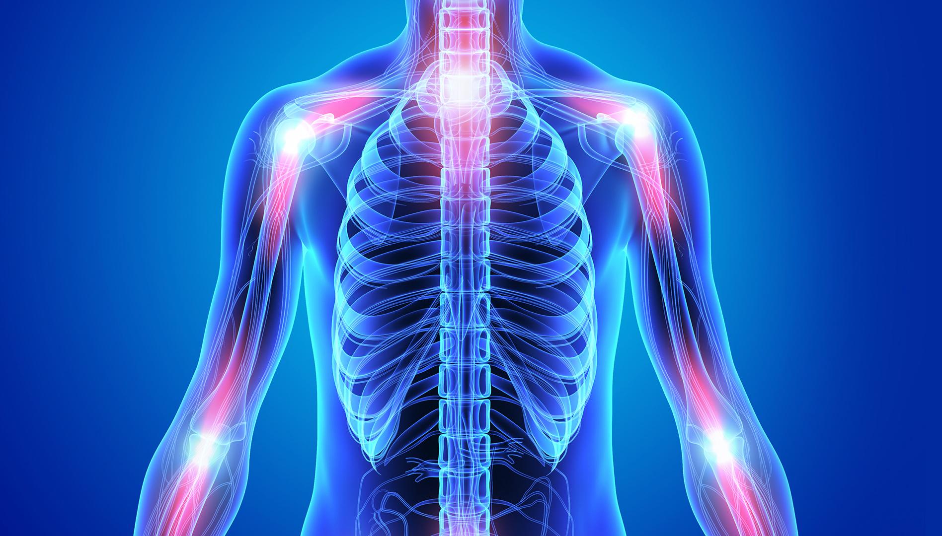 Полиартралгия или артралгия: что это такое, симптомы и лечение недуга